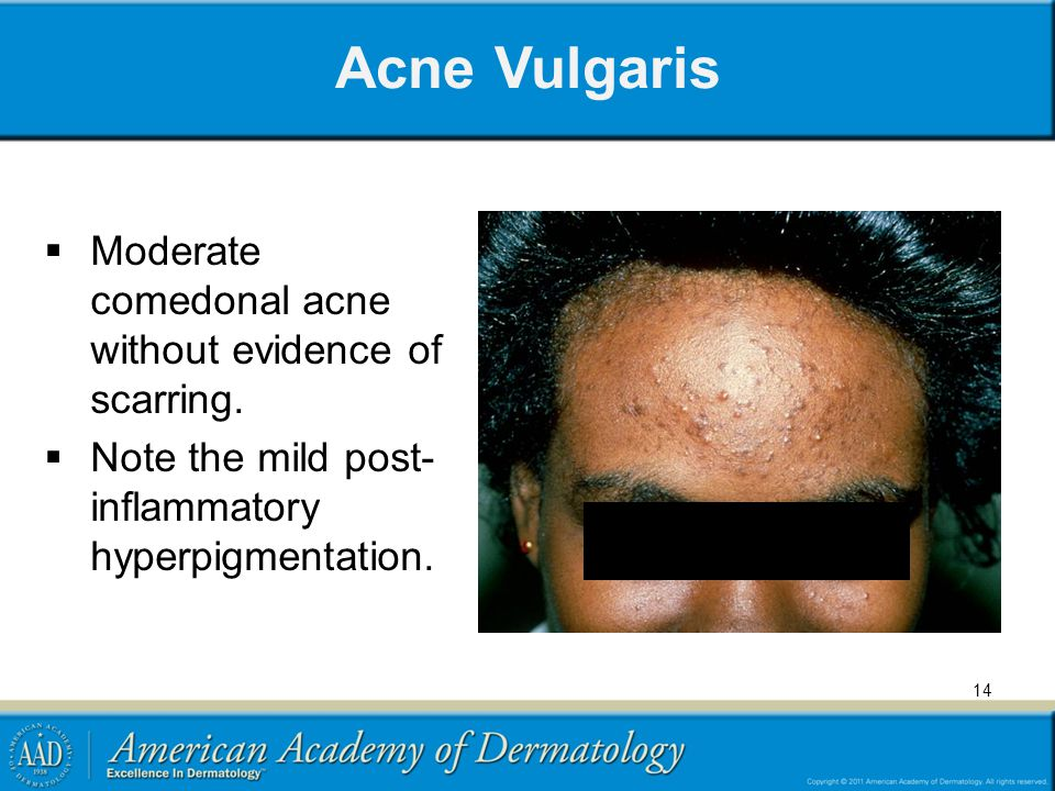 Acne Vulgaris Moderate comedonal acne without evidence of scarring.