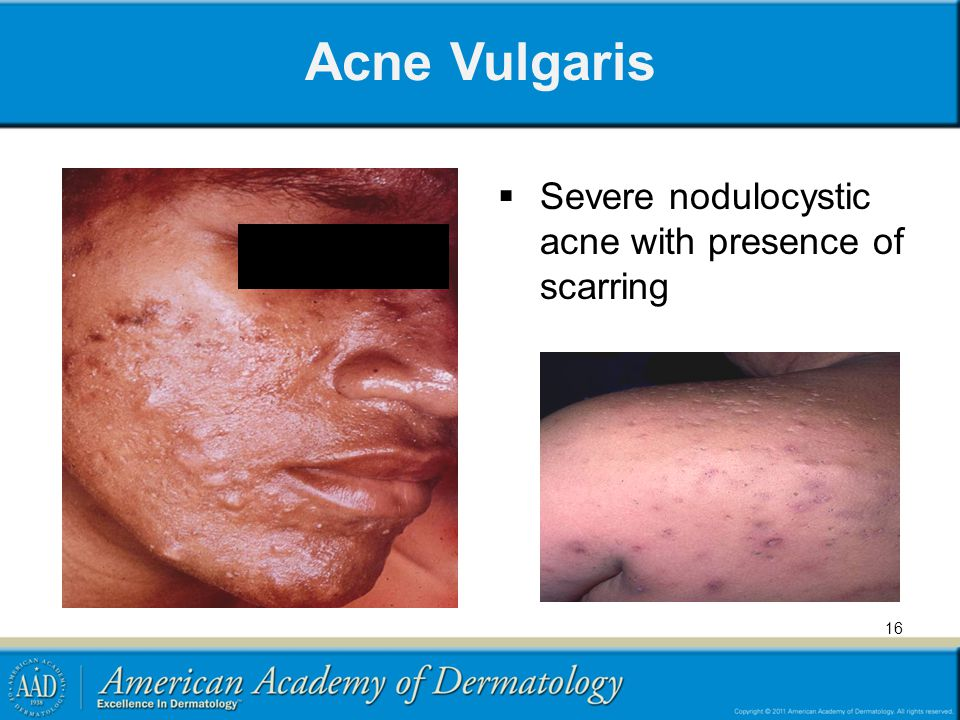 Medical Student Core Curriculum in Dermatology - ppt download