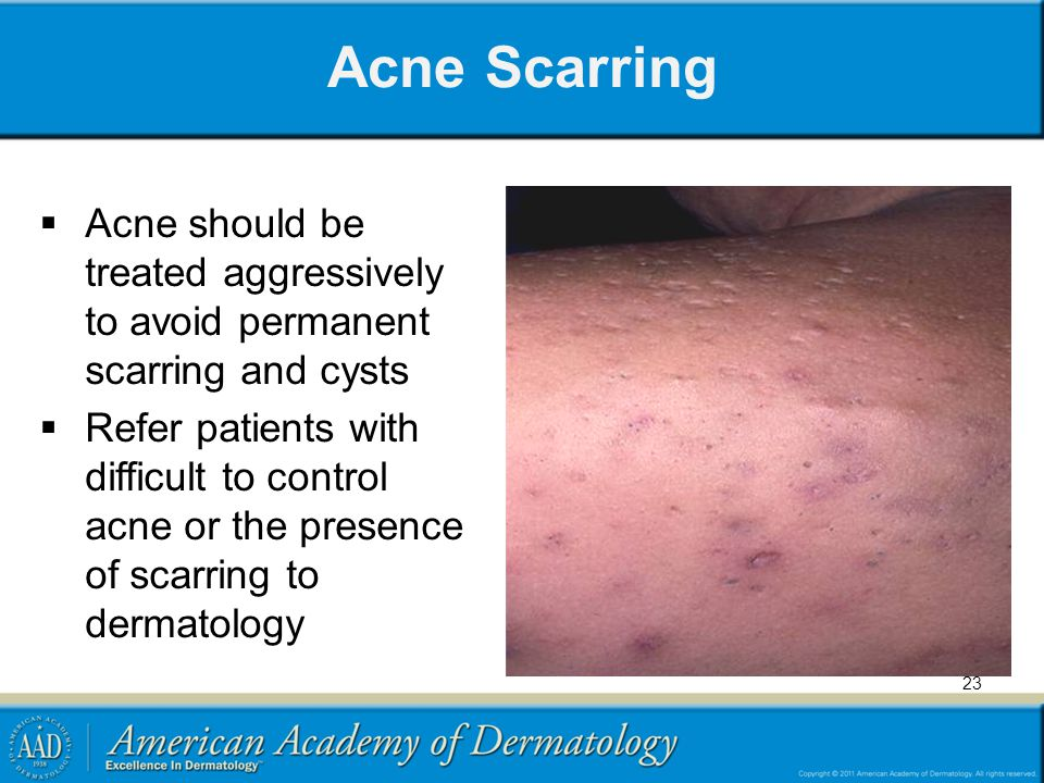 Acne Scarring Acne should be treated aggressively to avoid permanent scarring and cysts.