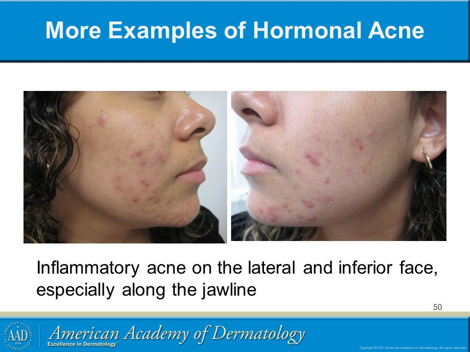 More Examples of Hormonal Acne