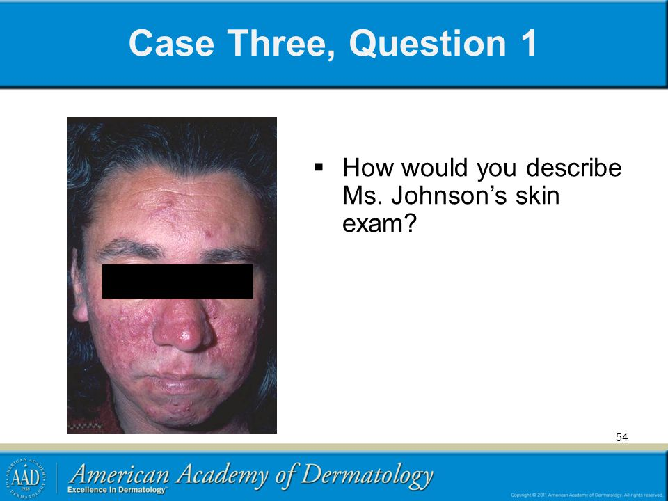 Case Three, Question 1 How would you describe Ms. Johnson's skin exam