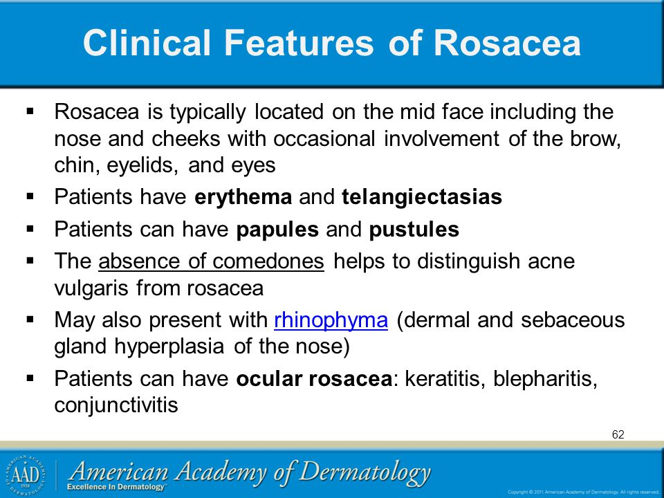 Clinical Features of Rosacea
