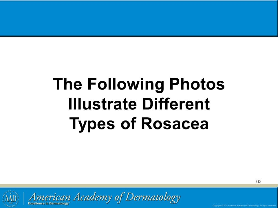 The Following Photos Illustrate Different Types of Rosacea