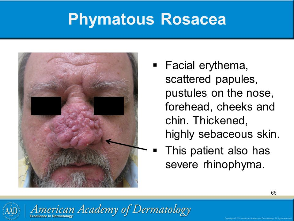 Phymatous Rosacea Facial erythema, scattered papules, pustules on the nose, forehead, cheeks and chin. Thickened, highly sebaceous skin.