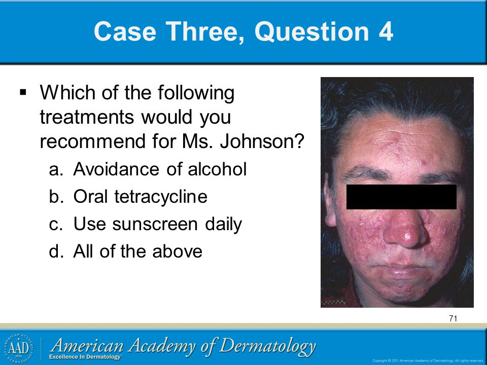Case Three, Question 4 Which of the following treatments would you recommend for Ms. Johnson Avoidance of alcohol.
