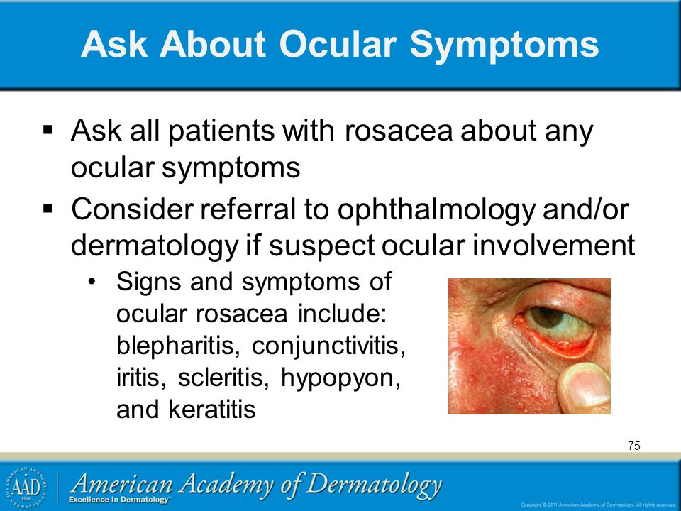 Ask About Ocular Symptoms