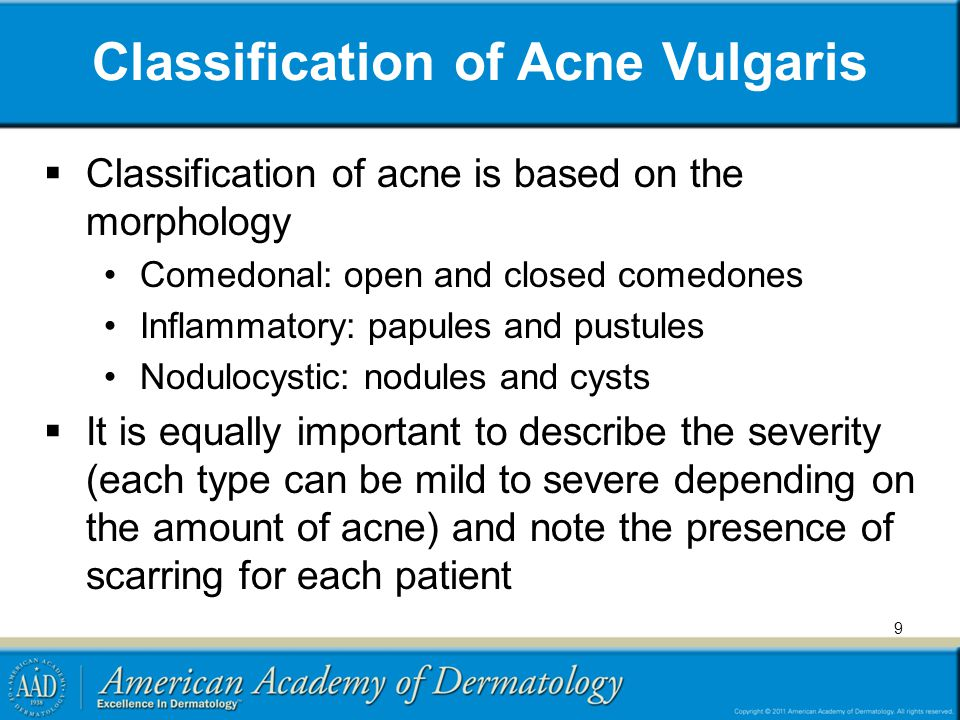 Classification of Acne Vulgaris
