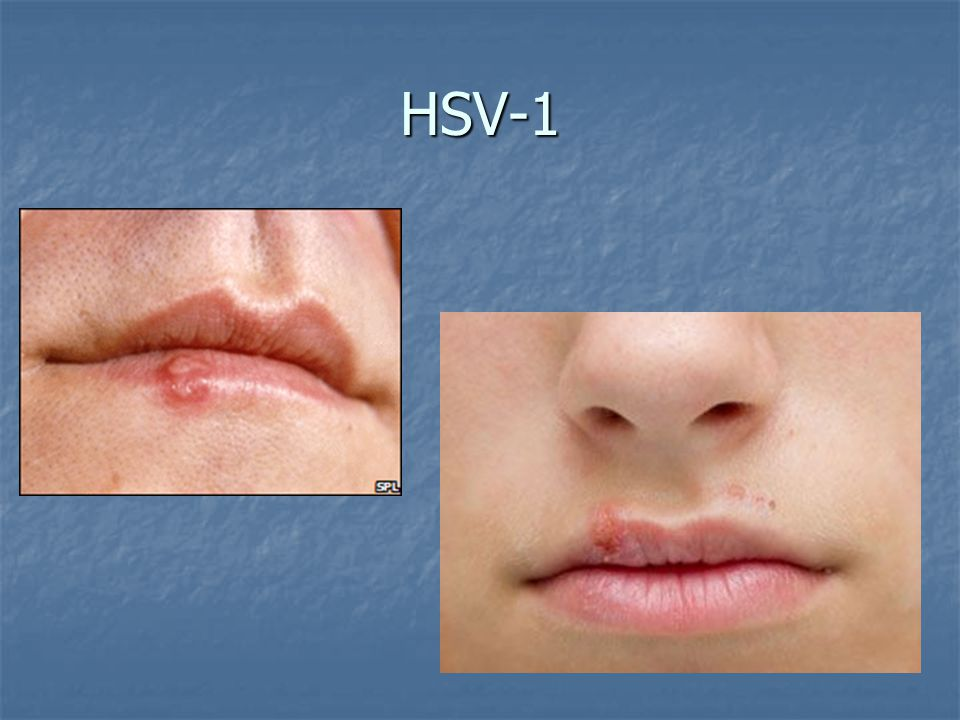 HSV-1