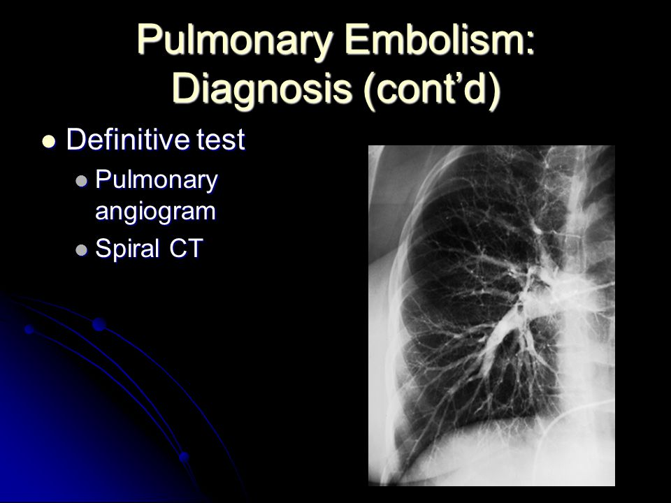 Pulmonary Embolism: Diagnosis (cont'd)