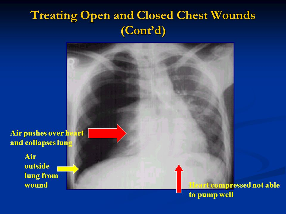 Treating Open and Closed Chest Wounds (Cont'd)