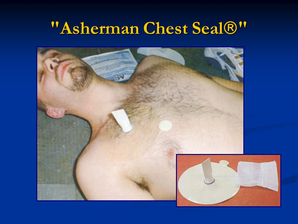 Asherman Chest Seal