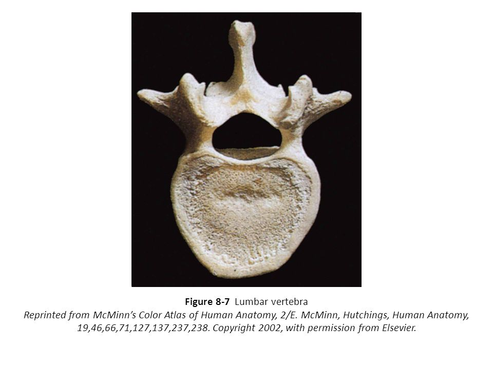 Figure 8-7 Lumbar vertebra