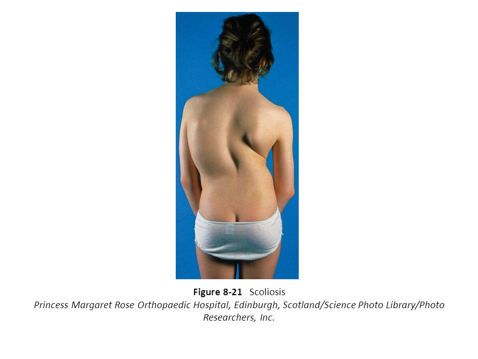 Figure 8-21 Scoliosis Princess Margaret Rose Orthopaedic Hospital, Edinburgh, Scotland/Science Photo Library/Photo Researchers, Inc.