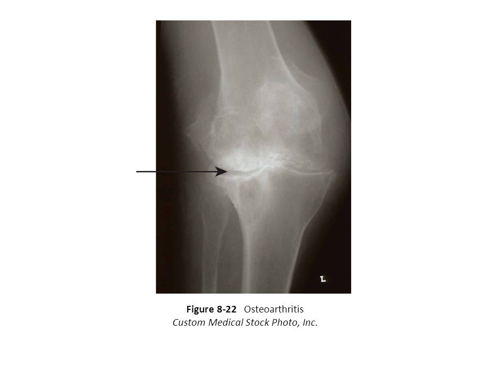 Figure 8-22 Osteoarthritis Custom Medical Stock Photo, Inc.