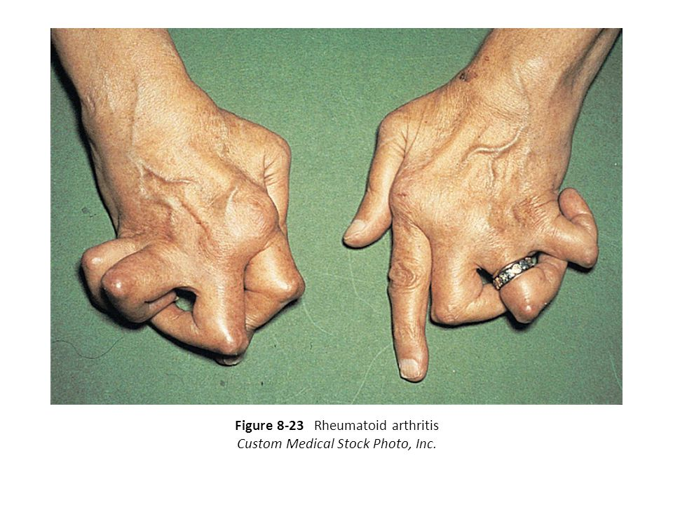 Figure 8-23 Rheumatoid arthritis Custom Medical Stock Photo, Inc.