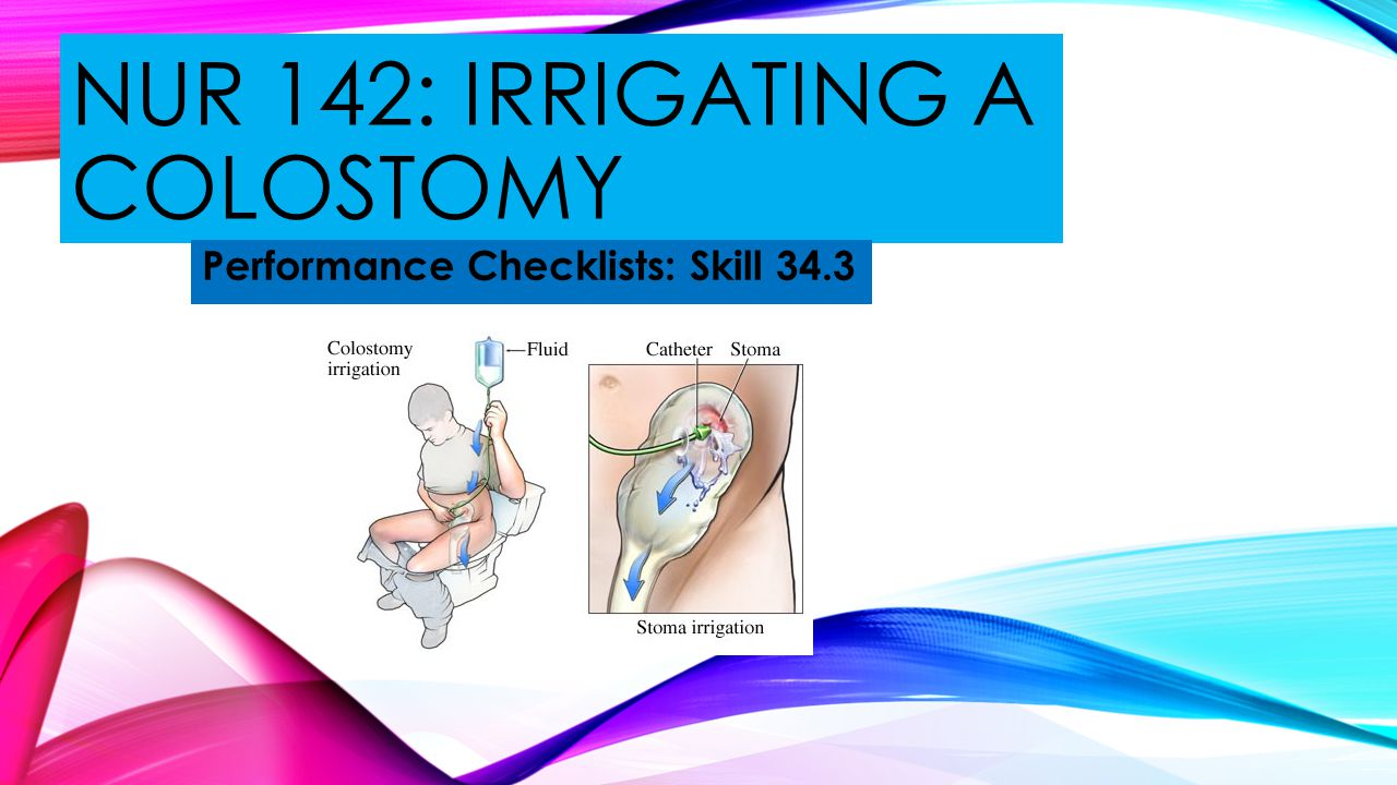 Nur 142: irrigating a colostomy