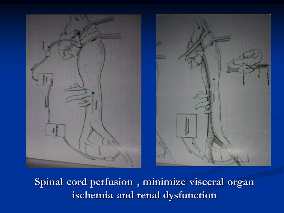 Spinal cord perfusion , minimize visceral organ ischemia and renal dysfunction