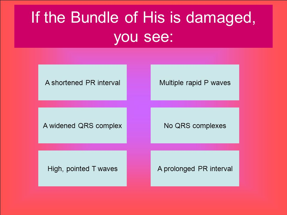 If the Bundle of His is damaged, you see: