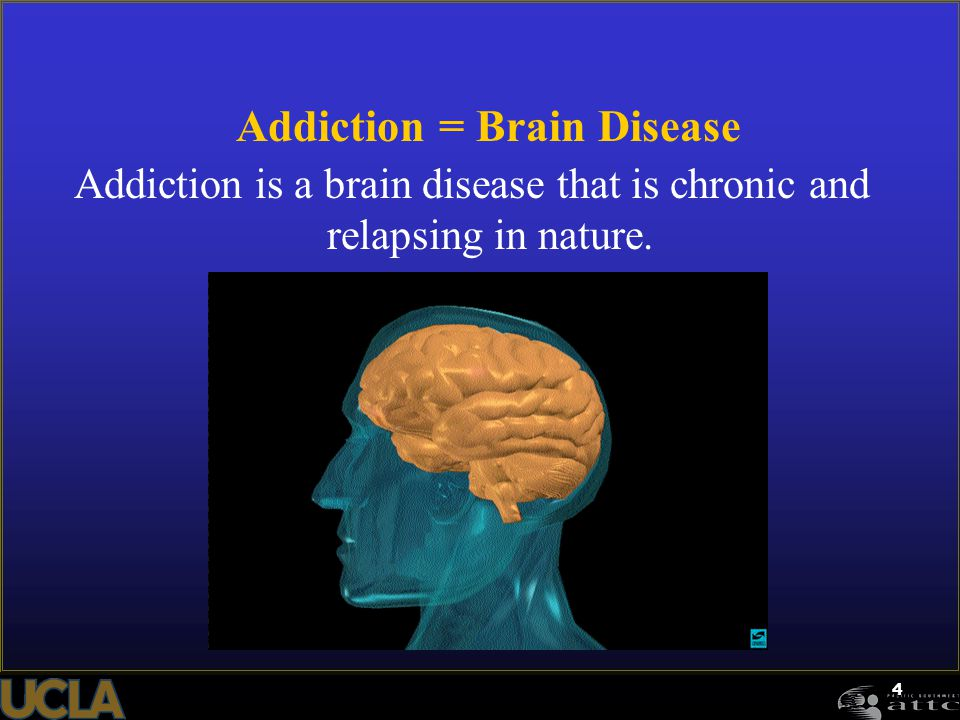 Addiction = Brain Disease