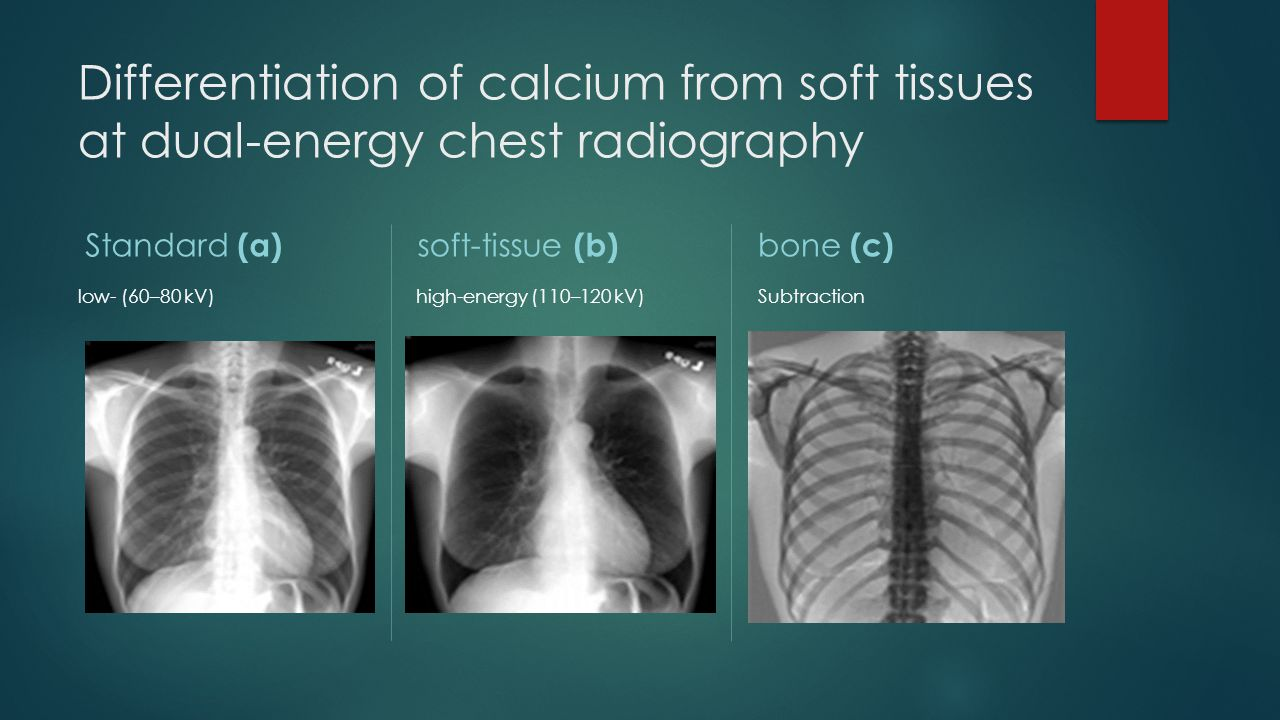 Differentiation of calcium from soft tissues at dual-energy chest radiography