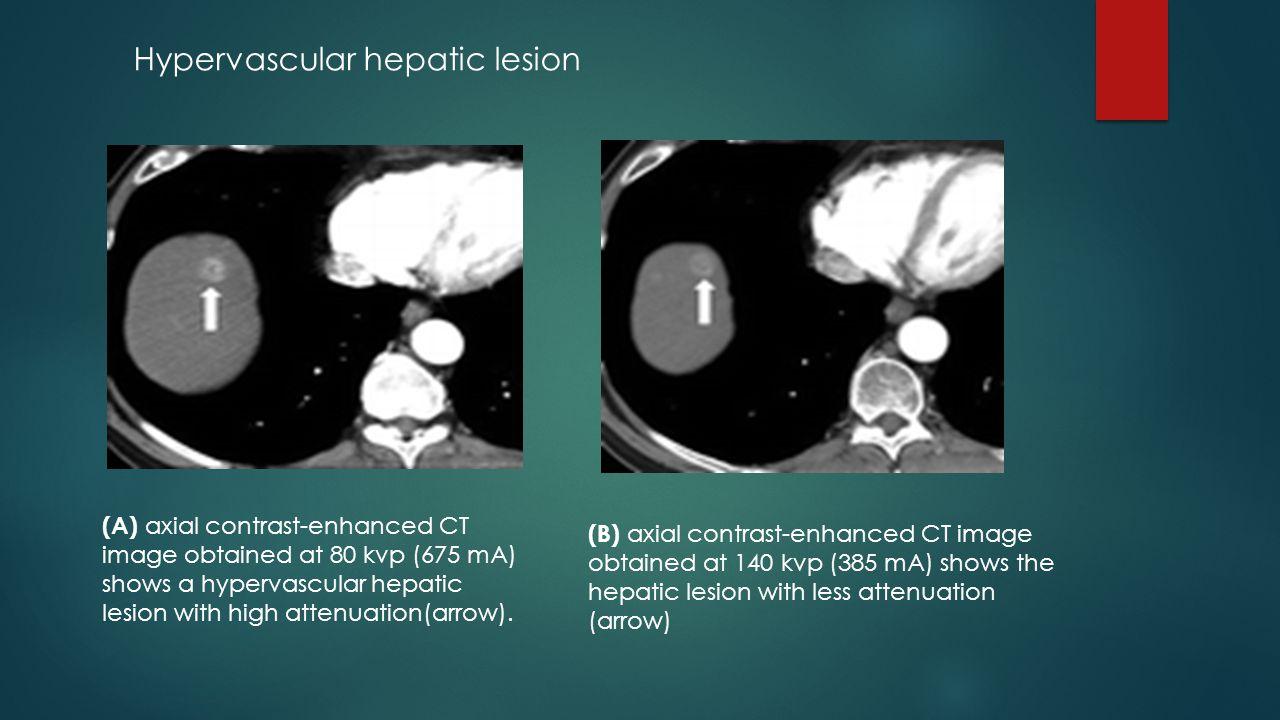 Hypervascular hepatic lesion
