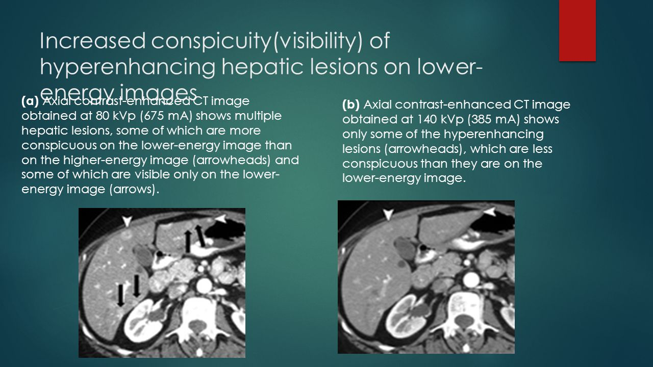 Increased conspicuity(visibility) of hyperenhancing hepatic lesions on lower-energy images