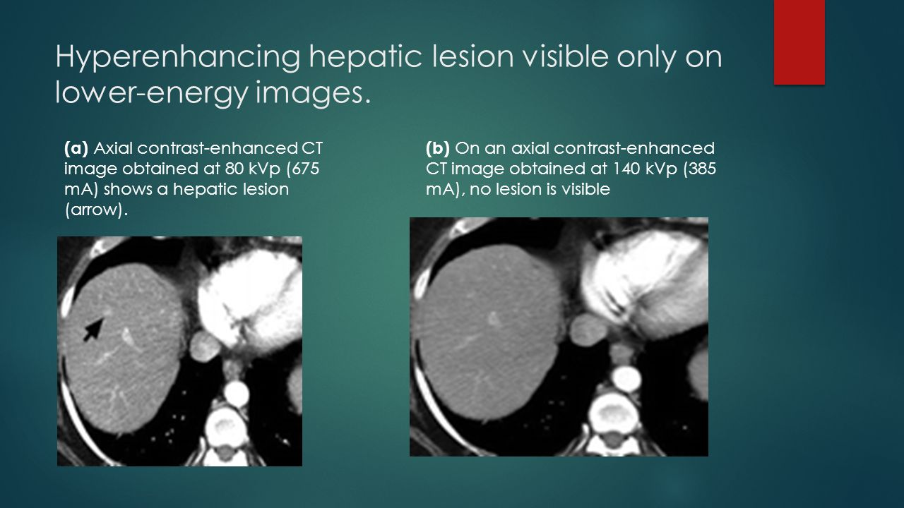 Hyperenhancing hepatic lesion visible only on lower-energy images.