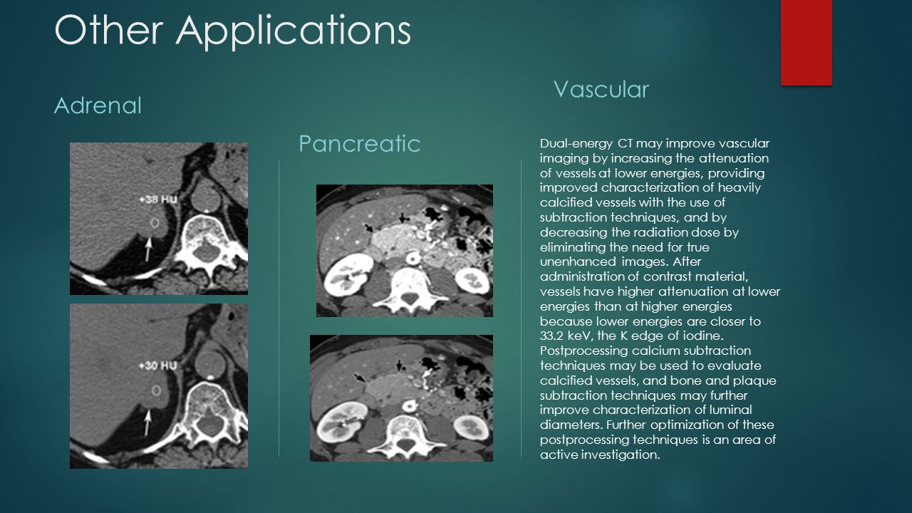 Other Applications Vascular Adrenal Pancreatic