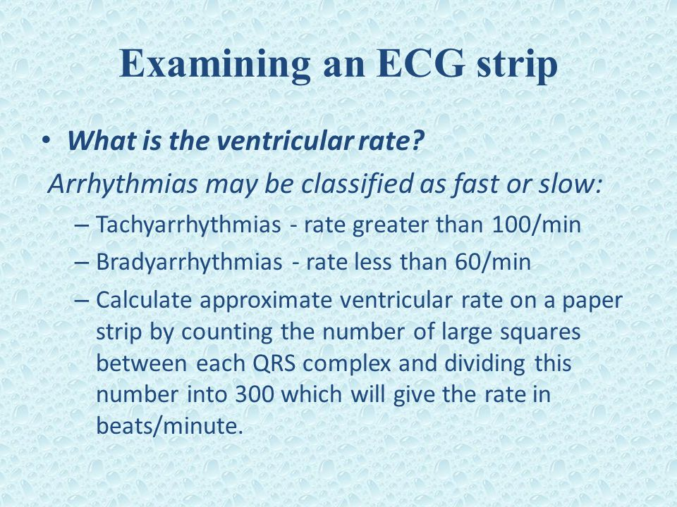 Examining an ECG strip What is the ventricular rate