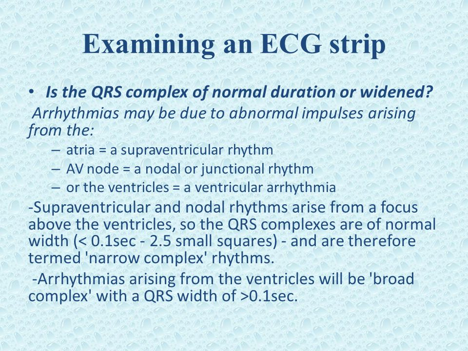 Examining an ECG strip Is the QRS complex of normal duration or widened Arrhythmias may be due to abnormal impulses arising from the: