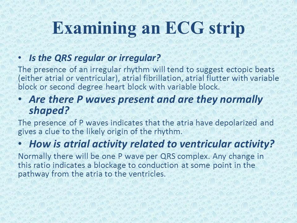 Examining an ECG strip Is the QRS regular or irregular