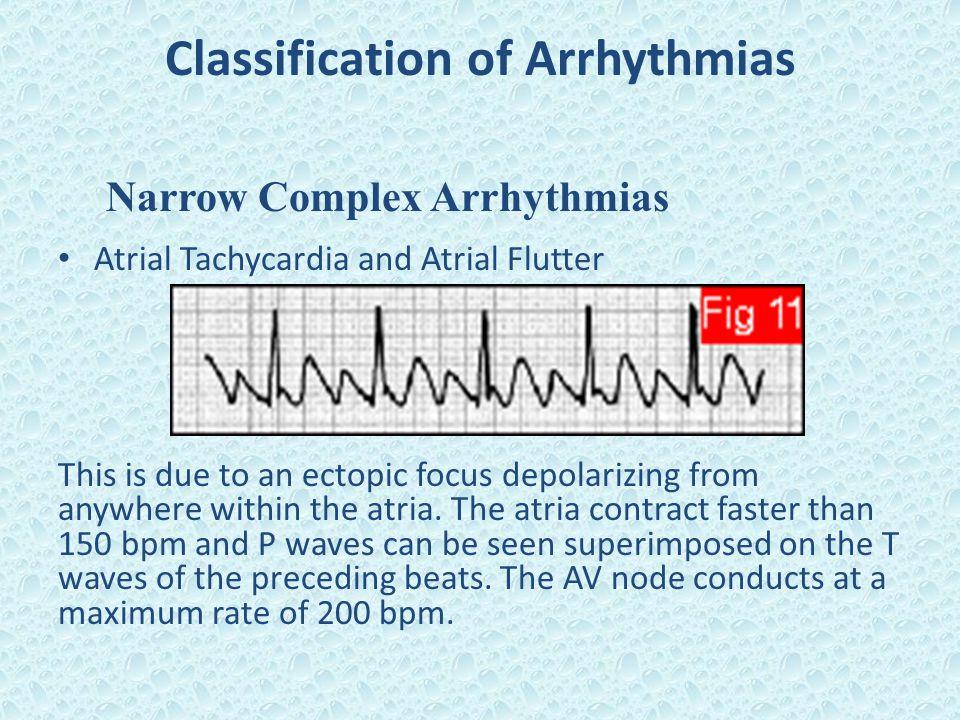 Classification of Arrhythmias