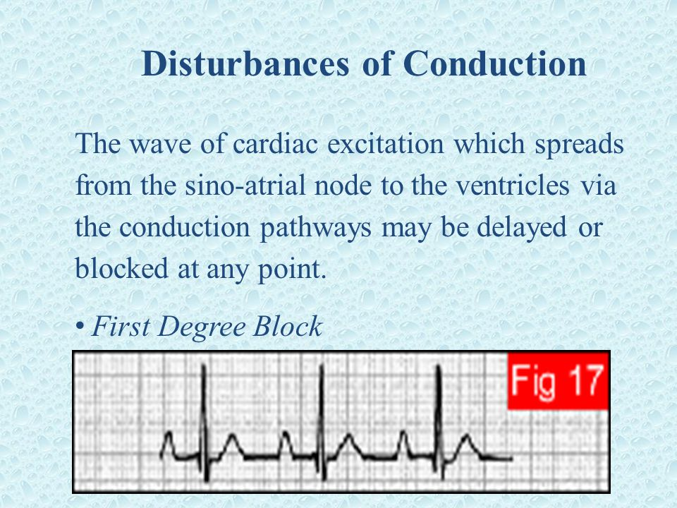 Disturbances of Conduction