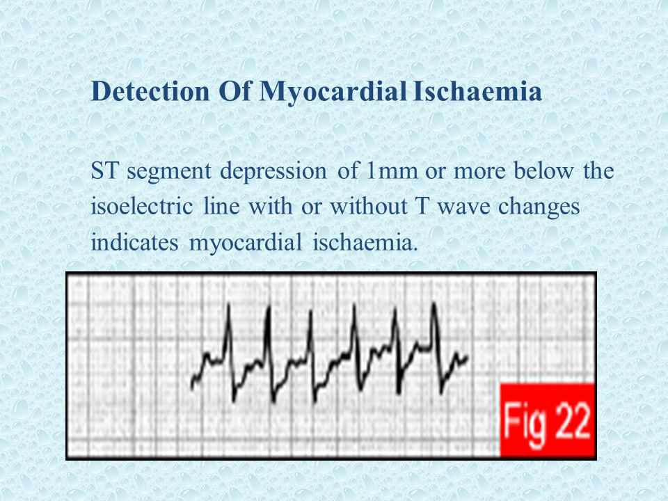Detection Of Myocardial Ischaemia ST segment depression of 1mm or more below the isoelectric line with or without T wave changes indicates myocardial ischaemia.