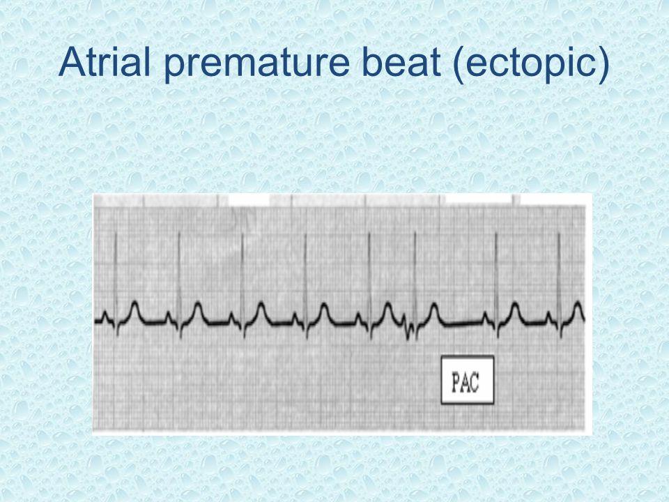 Atrial premature beat (ectopic)