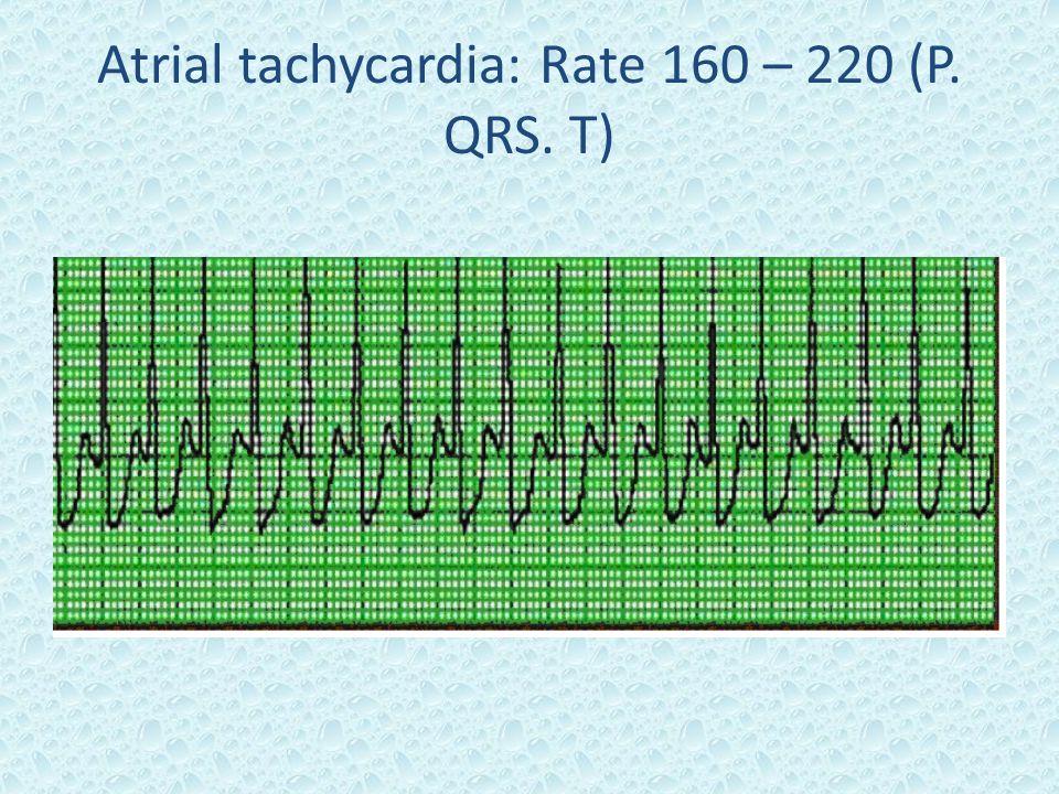 Atrial tachycardia: Rate 160 – 220 (P. QRS. T)