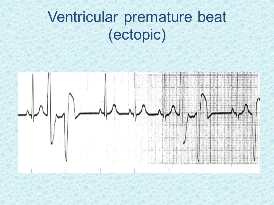 Ventricular premature beat (ectopic)