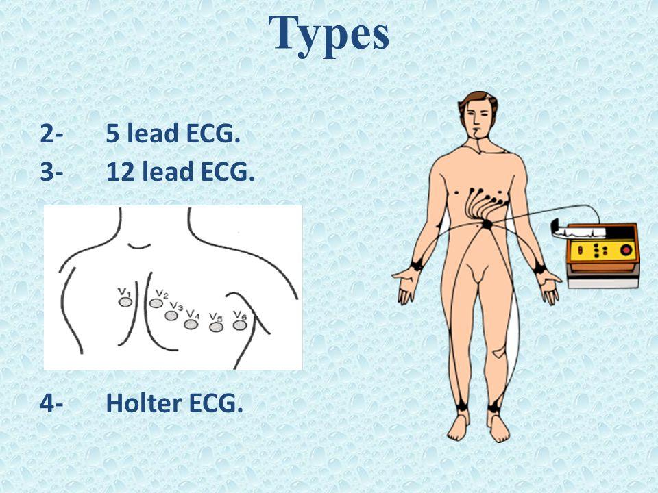 Types 2- 5 lead ECG. 3- 12 lead ECG. 4- Holter ECG.