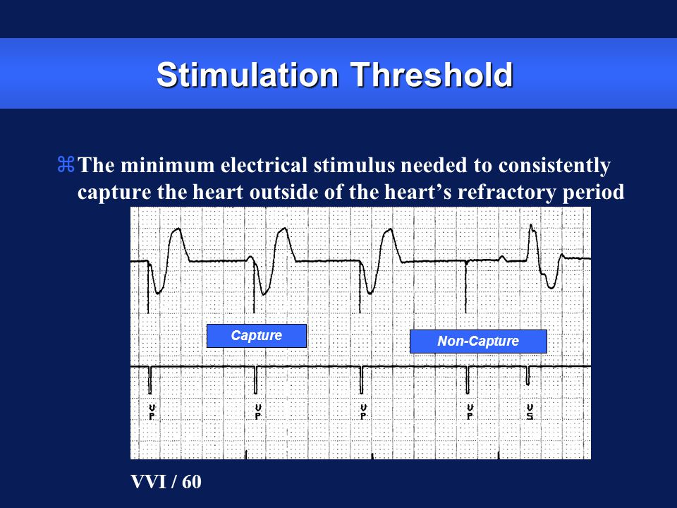 Stimulation Threshold