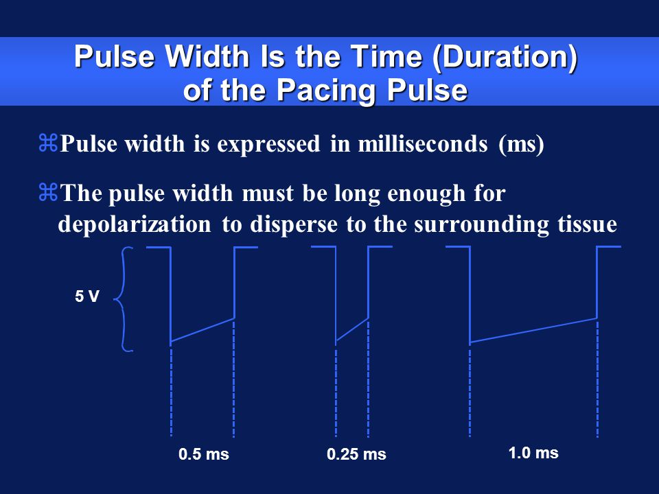 Pulse Width Is the Time (Duration) of the Pacing Pulse