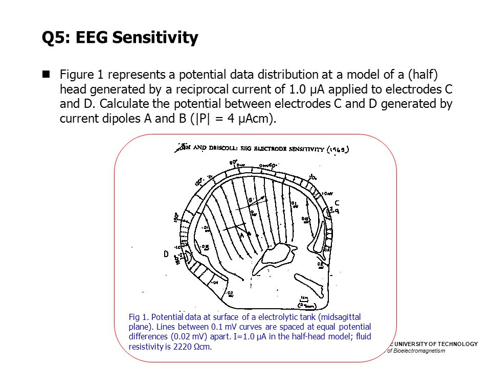 Q5: EEG Sensitivity