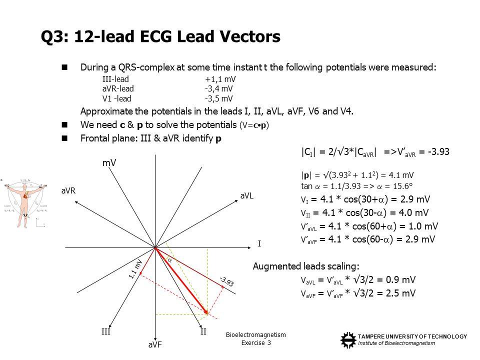 Q3: 12-lead ECG Lead Vectors