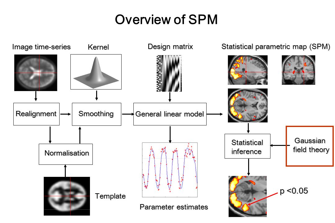 Overview of SPM p <0.05 Image time-series Kernel Design matrix