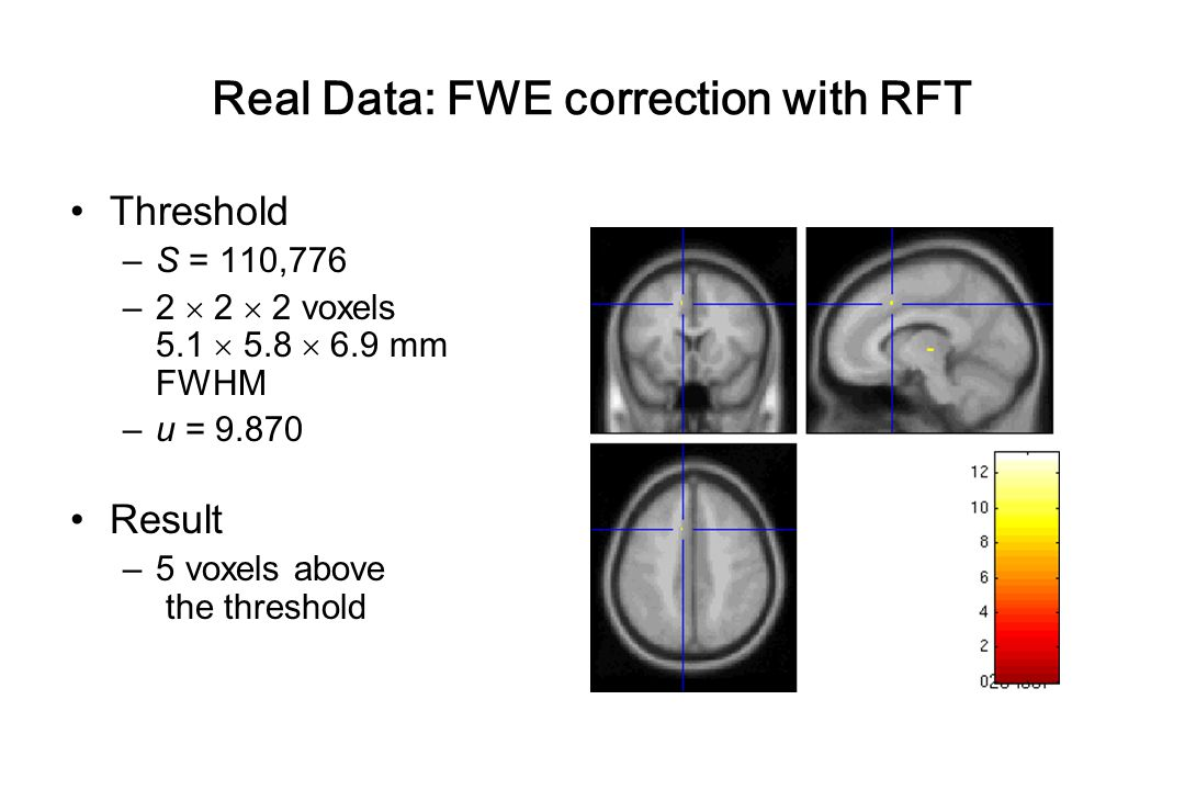 Real Data: FWE correction with RFT