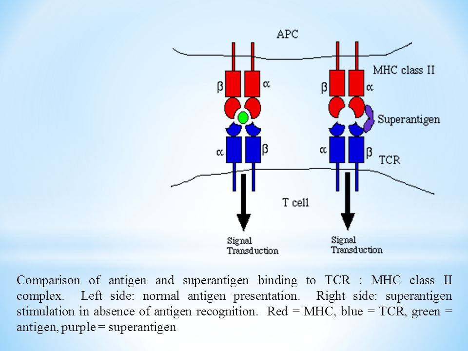 Comparison of antigen and superantigen binding to TCR : MHC class II complex. Left side: normal antigen presentation. Right side: superantigen stimulation in absence of antigen recognition. Red = MHC, blue = TCR, green = antigen, purple = superantigen