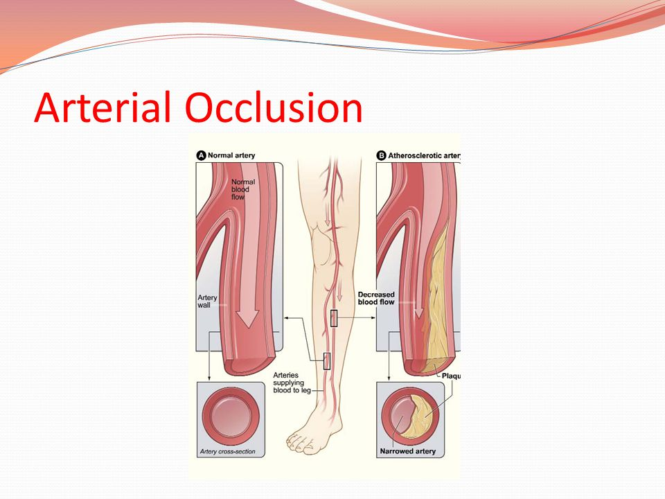 Arterial Occlusion
