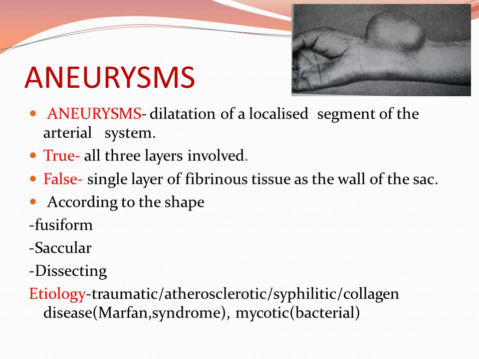 ANEURYSMS ANEURYSMS- dilatation of a localised segment of the arterial system. True- all three layers involved.
