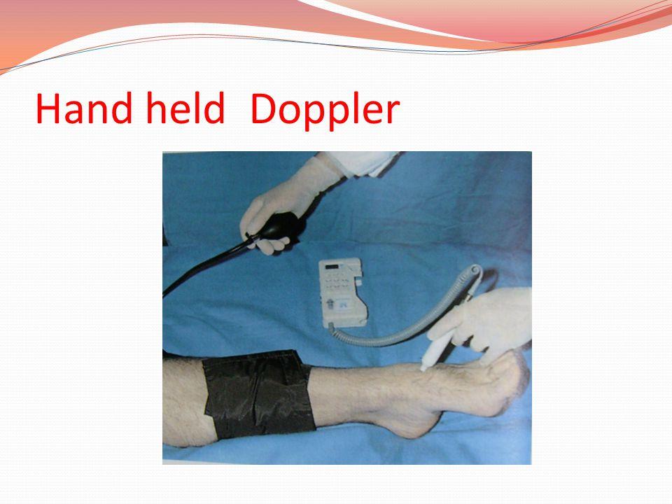 Hand held Doppler
