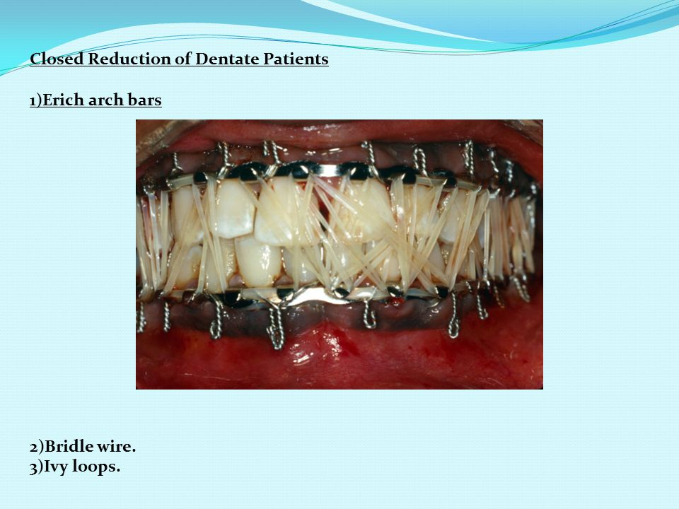 Closed Reduction of Dentate Patients