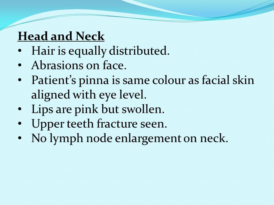 Head and Neck Hair is equally distributed. Abrasions on face. Patient's pinna is same colour as facial skin aligned with eye level.